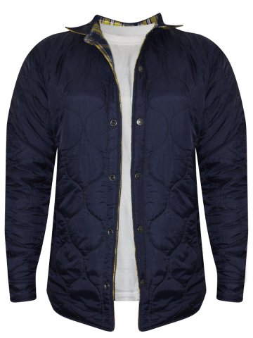 Levis Yellow & Navy Reversible Jacket at cilory